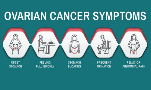 5 Early Symptoms of Ovarian Cancer