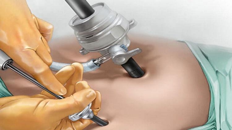 laparoscopic-surgery-in-bangalore