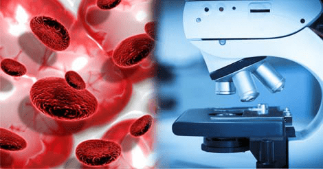 Blood Cancer Treatment in Bangalore